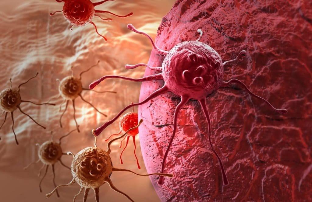 Установлена причина образования рака молочной железы