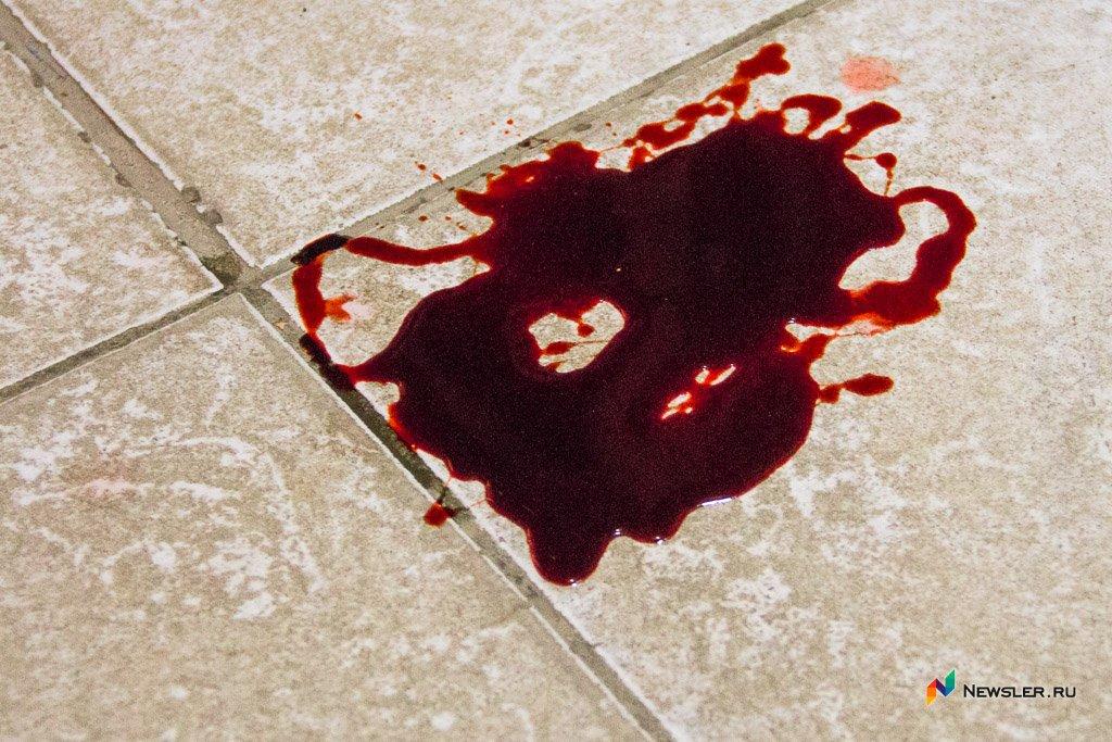 Картинки луж крови